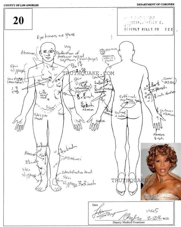 whitney houston with implants autopsy report detailing plastic surgery